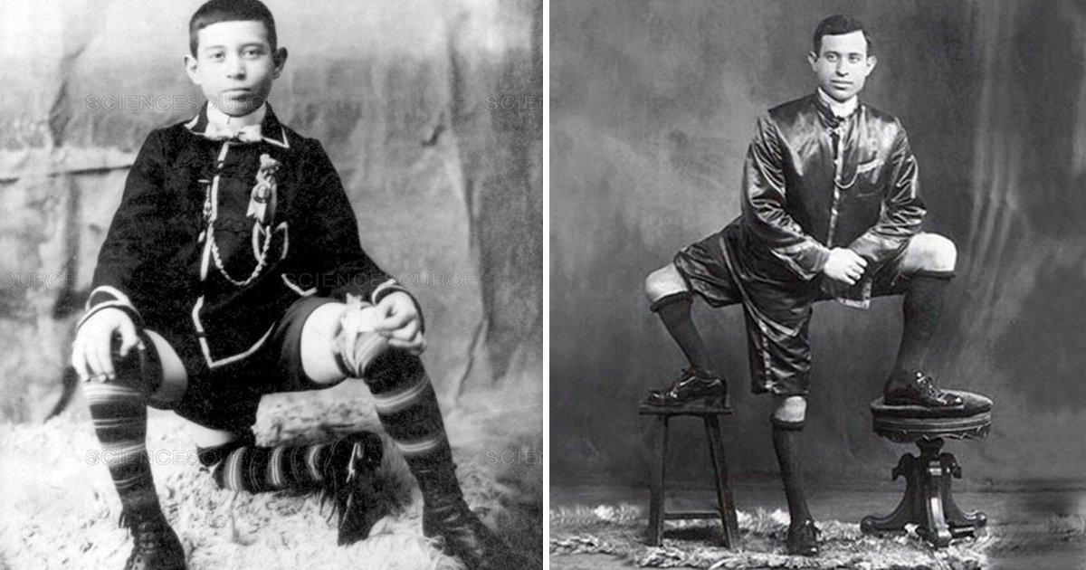 3pier - El hombre que nació con 3 piernas, después de las burlas alcanzó el éxito