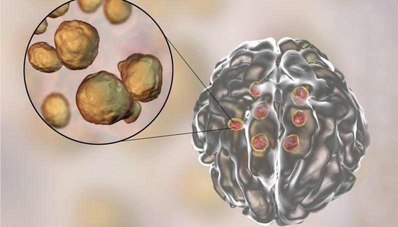 meningite cerebro 0617 400x800
