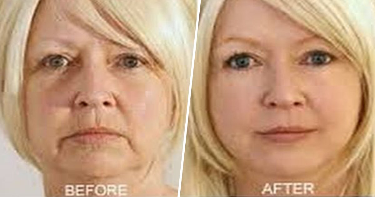 4ec8db8eb84ac 9 - This Anti-Aging Face Yoga Routine Helps You Look Young Naturally