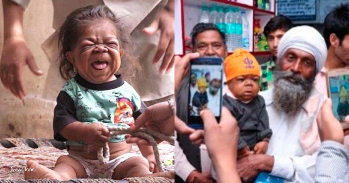 5 asd.png?resize=300,169 - Un hombre de 23 años mide y pesa lo mismo que un bebé de un año