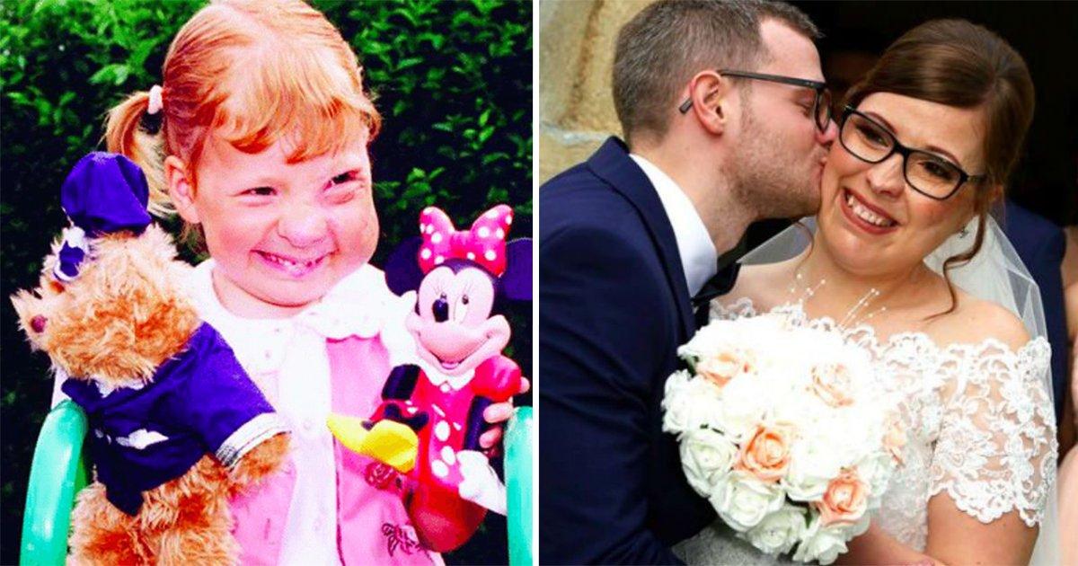 5ec8db8eb84ac 3.jpg?resize=412,232 - Une jeune femme née avec une énorme tumeur sur le visage est absolument magnifique le jour de son mariage