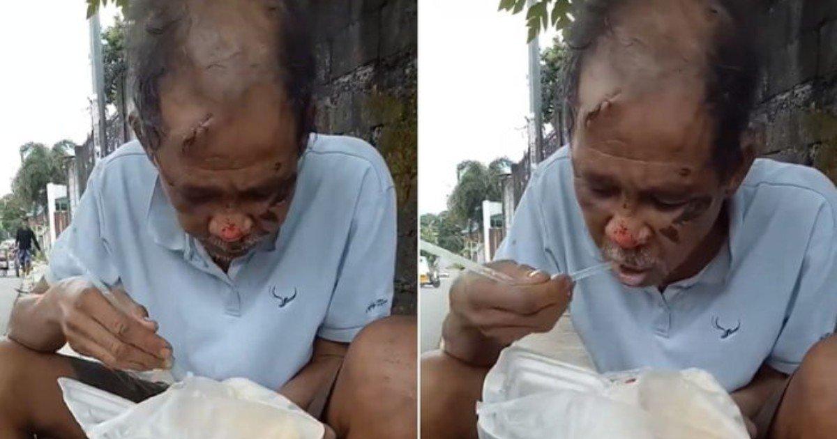 9532r253lvb5d60jtb30 - 피 흘리는 모습을 보고 다가온 시민에게 '밥 좀 달라'고 애원하는 노숙자  (영상)