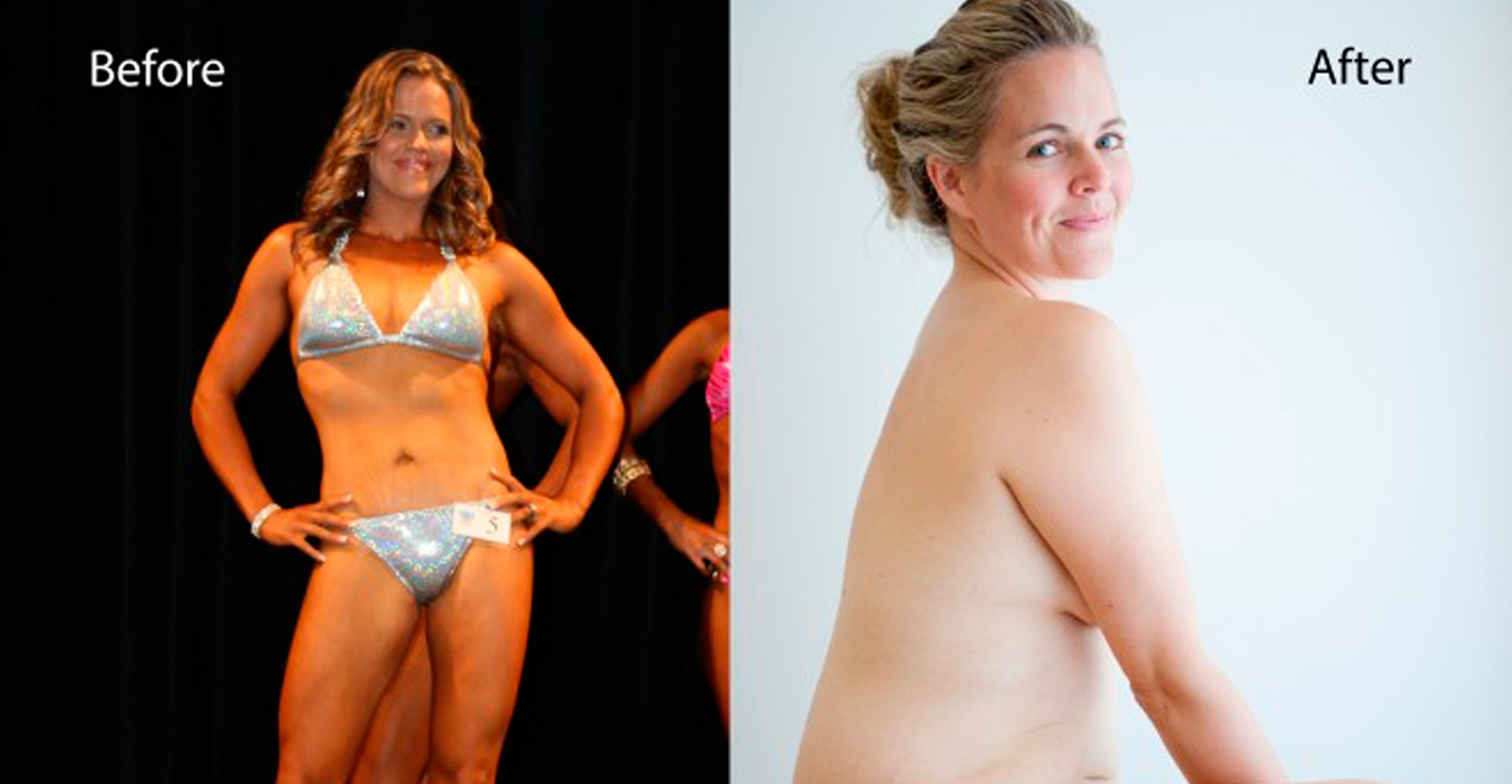 aas - The 'Before And After' Photo Of Australian Mom Goes Viral, Inspires Millions Across The Globe