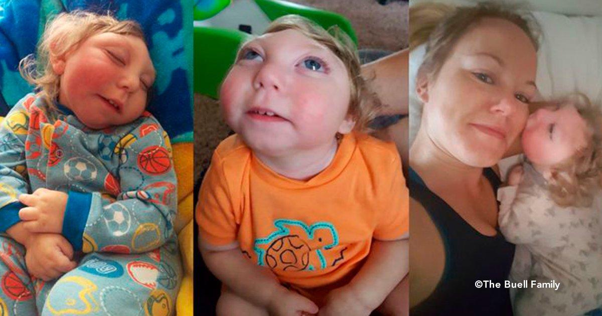 cab - Nació sin una parte del cerebro, le diagnosticaron poco tiempo de vida, pero ya tiene 3 años