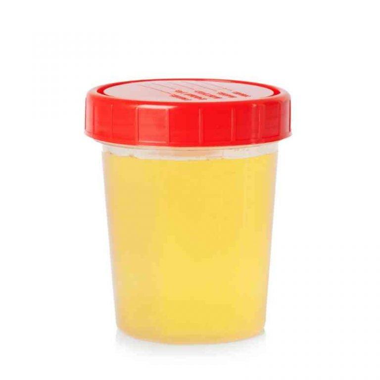 cor-de-urina-indica-sua-saúde-4