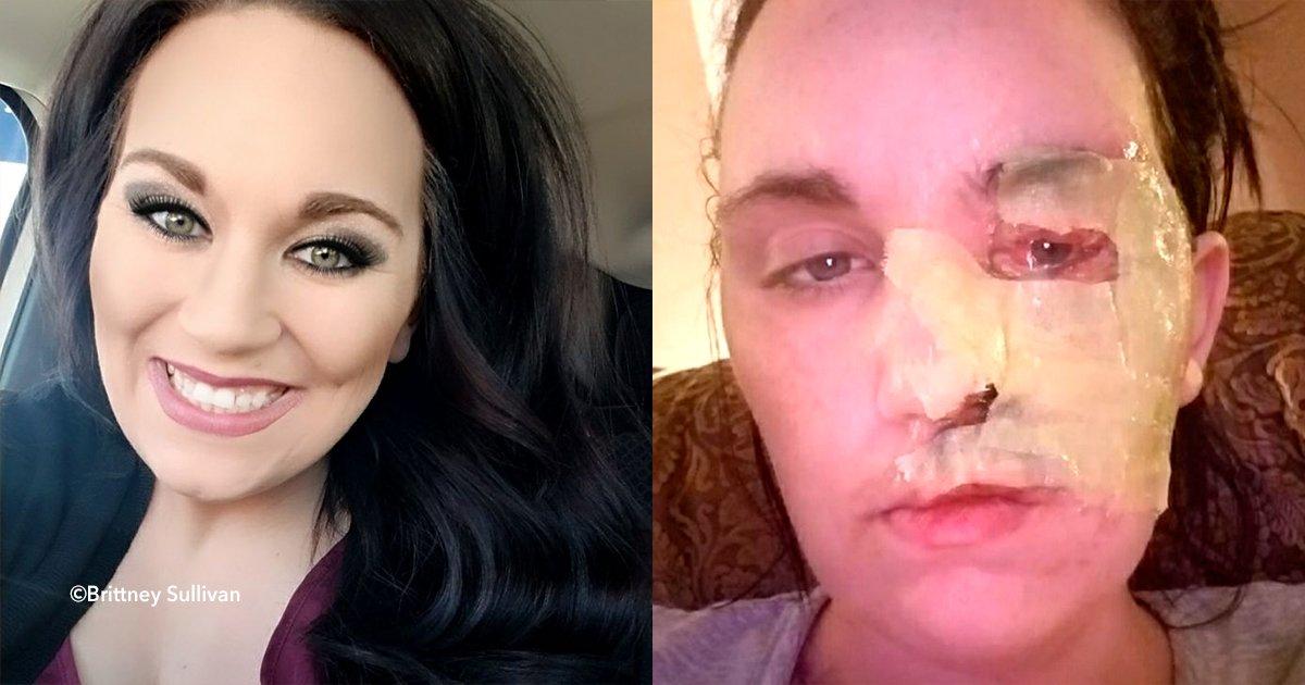 cover22britanu - Una madre sufrió un accidente y se quemó la mitad del rostro pero decidió tomar esto como una enseñanza