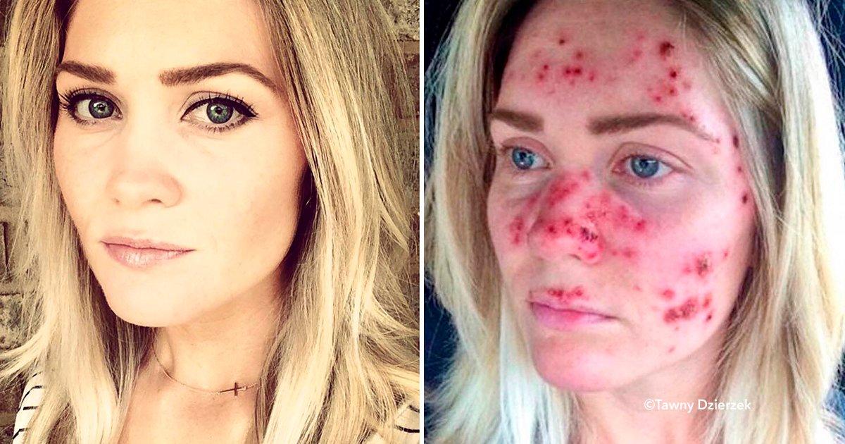 cover22cara 1.jpg?resize=648,365 - Se sacó una selfie para mostrar como luce el cáncer de piel y logró concientizar a miles de personas