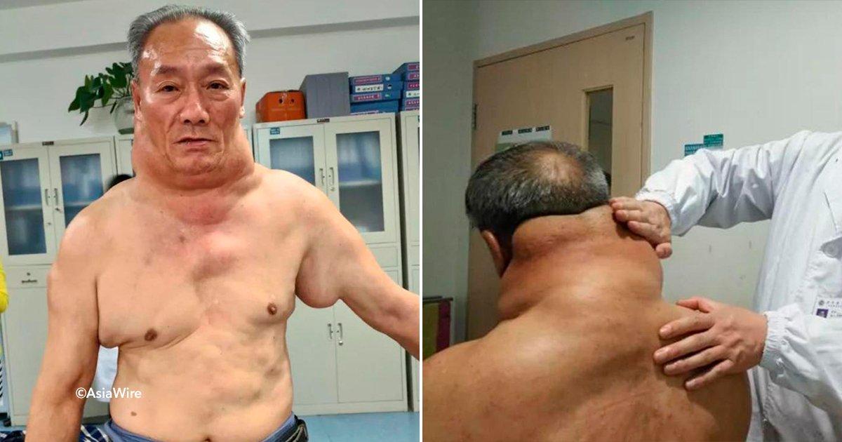 """cover22cuello.jpg?resize=300,169 - A este hombre en China le creció el cuello y los hombros de manera exorbitante, en las redes lo llamaban """"Hulk"""""""
