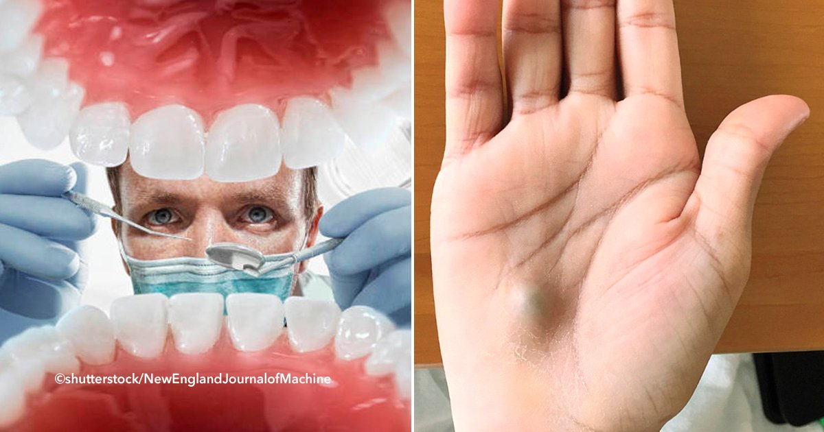cover22dent.jpg?resize=1200,630 - Si alguna vez vas al dentista y al salir tienes un bulto en tu mano, debes ir inmediatamente al hospital