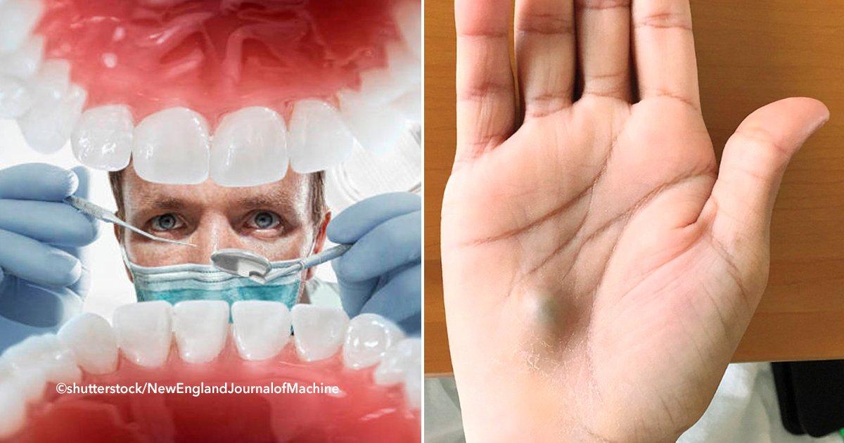 cover22dent - Si alguna vez vas al dentista y al salir te percatas que tienes un bulto en la mano, ve inmediatamente al hospital