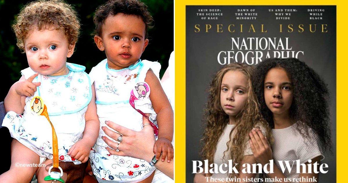 cover22nat - Estas mellizas han roto los estereotipos acerca de las razas, son diferentes y su caso se da sólo en 1 de cada 100 gemelos.