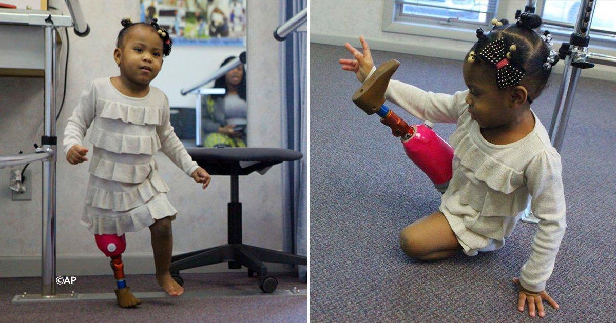 cover22pta.jpg?resize=648,365 - Tiene solo dos años y por fin logró caminar gracias a una pierna ortopédica
