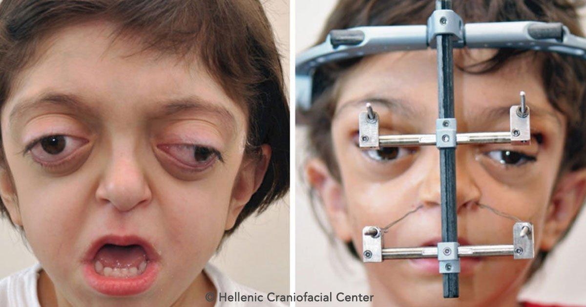 covr.jpg?resize=300,169 - Un extraño síndrome deformó la cara de este niño al nacer, pero luego de someterse a un tratamiento logró conocer su verdadero rostro
