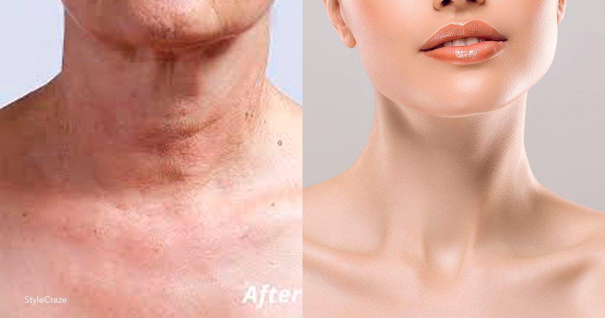 cuello.png?resize=1200,630 - Mira estos 5 trucos para que tu cuello luzca firme y sensual sin necesidad de cirugías