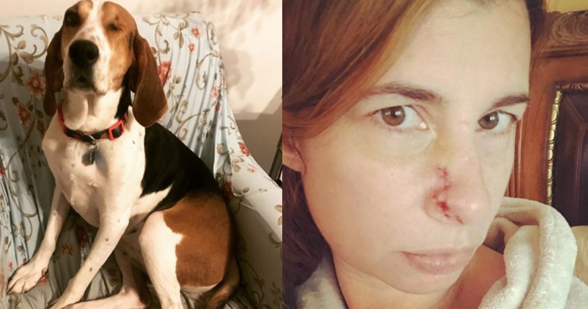 dog keeps sniffing.jpg?resize=300,169 - Dog Keeps Sniffing Lump On Owner's Nose, Realizes Her Pet Saves Her Life After Visiting A Doctor
