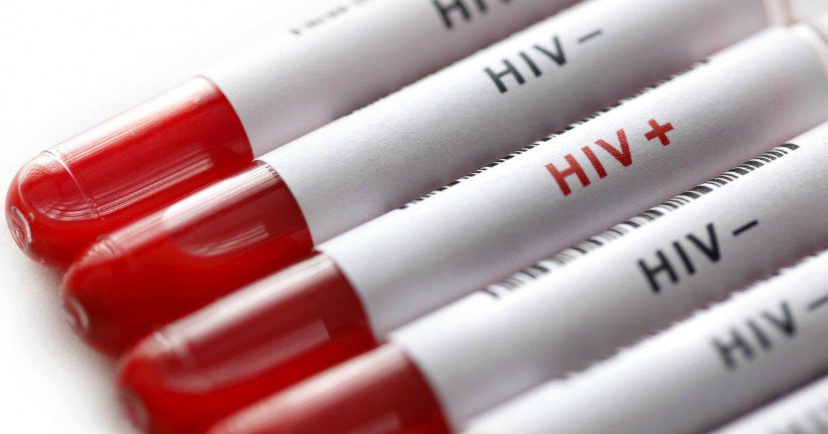 hivthum - Cura do HIV: pesquisadores brasileiros descobrem uma planta que pode acabar com o vírus