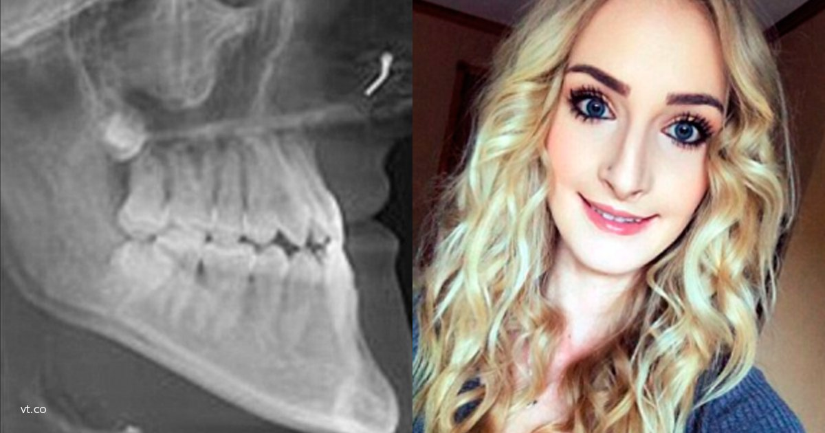 mandibula - Le hacían bullying por el tamaño de su mandíbula, se operó y el cambio en su cara es impresionante