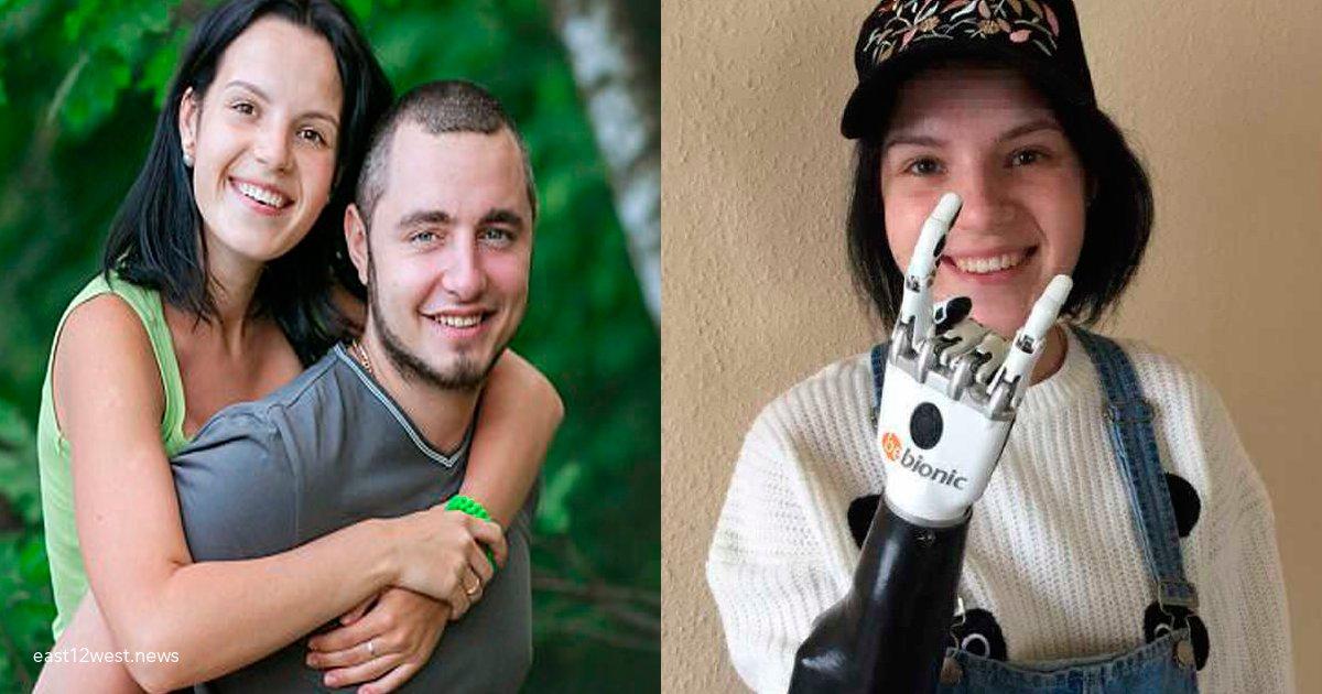 manos bionicas.png?resize=636,358 - Seu ex-marido cortou-lhe as mãos com um machado; hoje ela afirma estar mais forte do que nunca