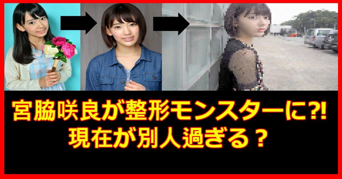 miyawaki.png?resize=648,365 - 宮脇咲良は整形モンスター⁈過去と現在の写真で徹底検証