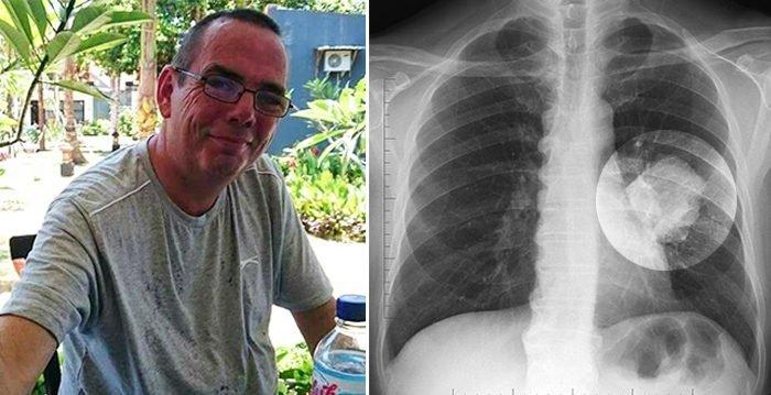 nate 161 ab 700x359.jpg?resize=648,365 - Insólito: Le diagnosticaron cáncer de pulmón, pero luego le explicaron que se trataba de un juguete que ingirió hace décadas