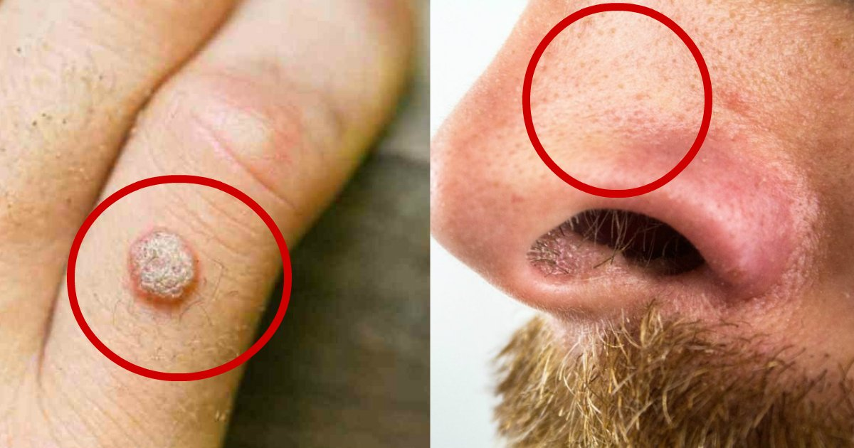 natural remedies - Naturally Eliminate Blackheads, Warts, Moles, Age Spots, And Skin Tags With These Home Remedies