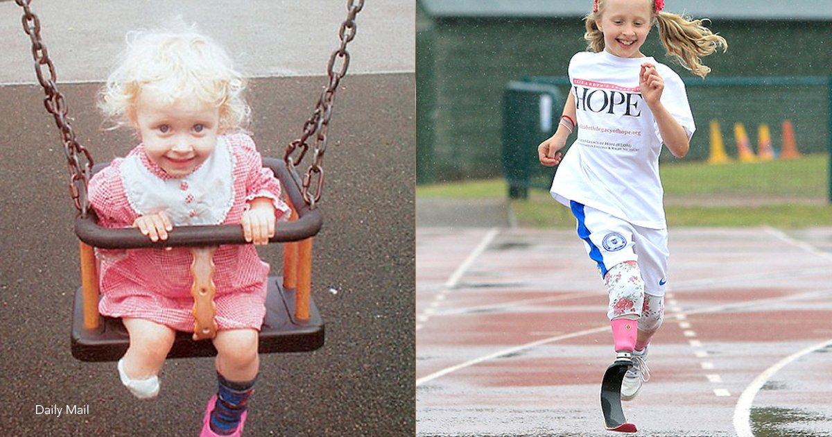 nina.png?resize=300,169 - Aunque ella perdió la pierna a sus dos años, su sueño era ser bailarina, y hoy pudo lograrlo