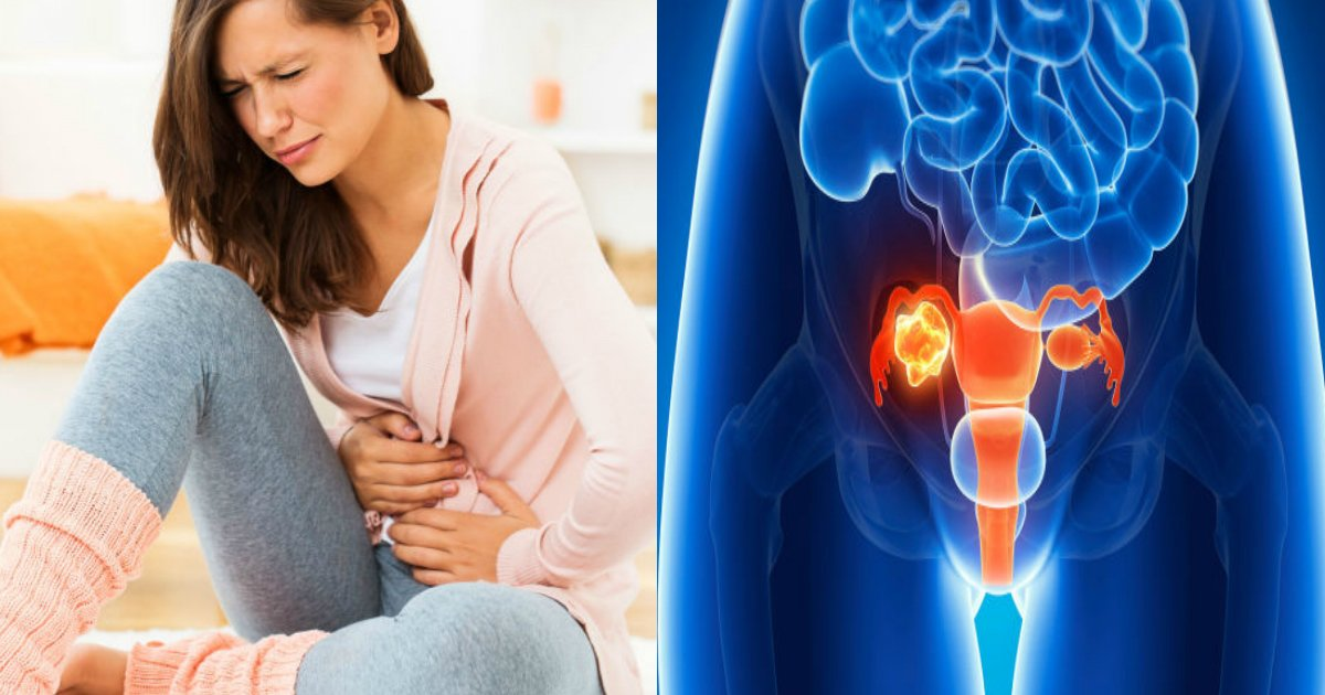 ovarian cancer 2.jpg?resize=412,232 - Quatre signes précoces de cancer de l'ovaire que toute femme devrait savoir