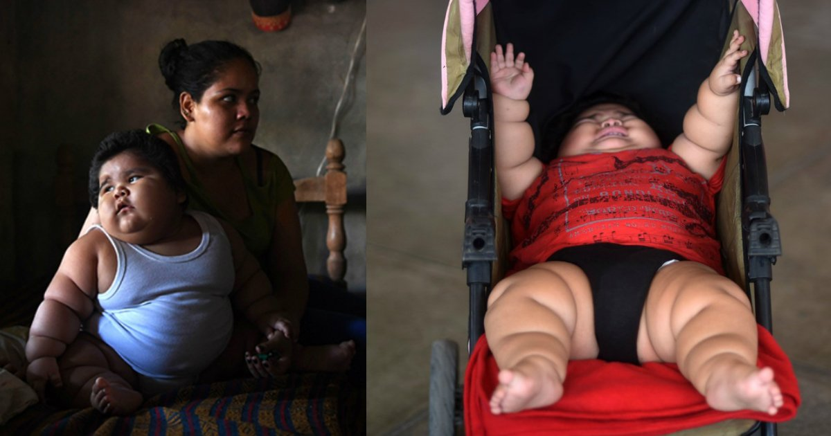 overweight baby.jpg?resize=412,232 - 10-Month-Old Baby Weighs 62 Pounds And Doctors Don't Know Why