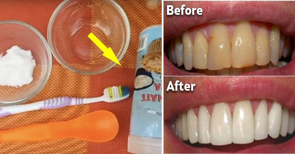 plaque - Plaque: Use This Household Remedy to Slip out of Your Dentist's Chair