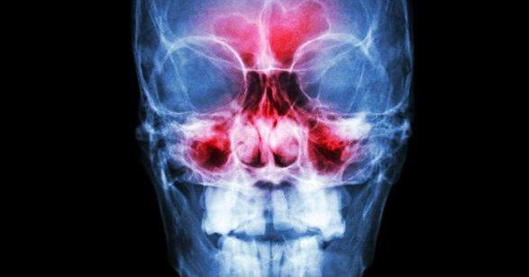 sinusite raio x 1216 1400x600.jpg?resize=1200,630 - Evite que sua sinusite vire uma meningite!