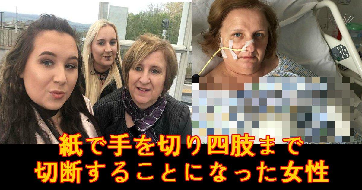 tewokiru - 紙で手を切り四肢を切断することになってしまった女性。なぜこんなことに?