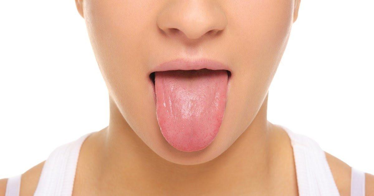 thumbnail lingua saude - Doze problemas de saúde descobertos apenas pela cor da língua!
