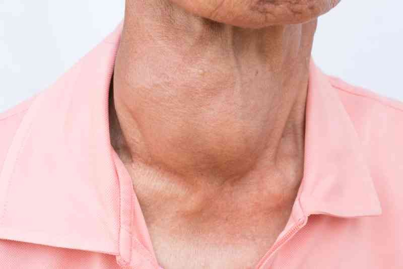 thyroid-disorders-3
