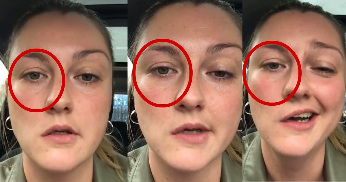 too much numb - This Woman Can't Stop Laughing After Dentist Numbs Half Of Her Face