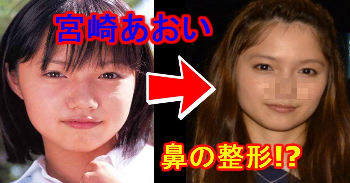 "unnamed file 4.jpg?resize=1200,630 - 宮崎あおいも・・""鼻にプロテーゼ""!? 鼻を整形している芸能人"