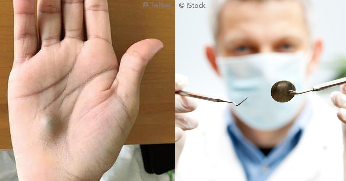 untitled 1 100.jpg?resize=1200,630 - Ele foi ao dentista e, dias depois, notou um caroço azul em sua mão