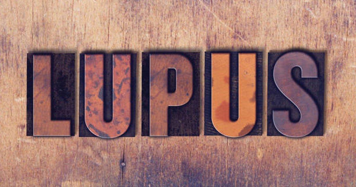 untitled 1 134 - Lupus: 10 Síntomas comunes que pocos conocen