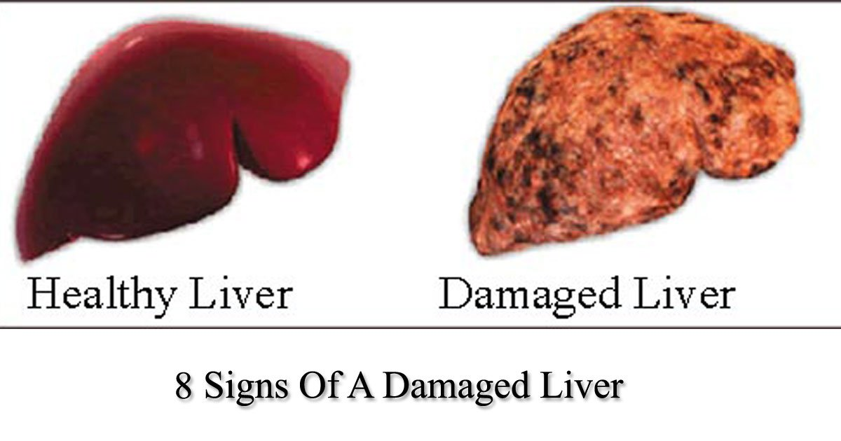 untitled 1 146 - Have You Noticed These Signs? These Signs Are Trying To Tell You That Your Liver Is Damaged