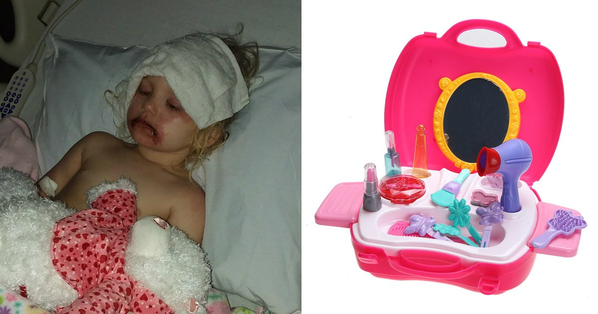 untitled 1 16.jpg?resize=300,169 - Cosméticos de brinquedo causaram reações alérgicas graves nesta menina de 3 anos