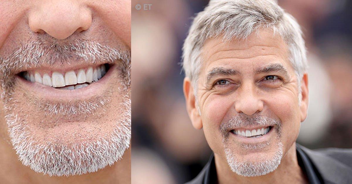untitled 1 35 - Sonrisas que cautivan, 7 celebridades que gastaron una fortuna en su dentadura