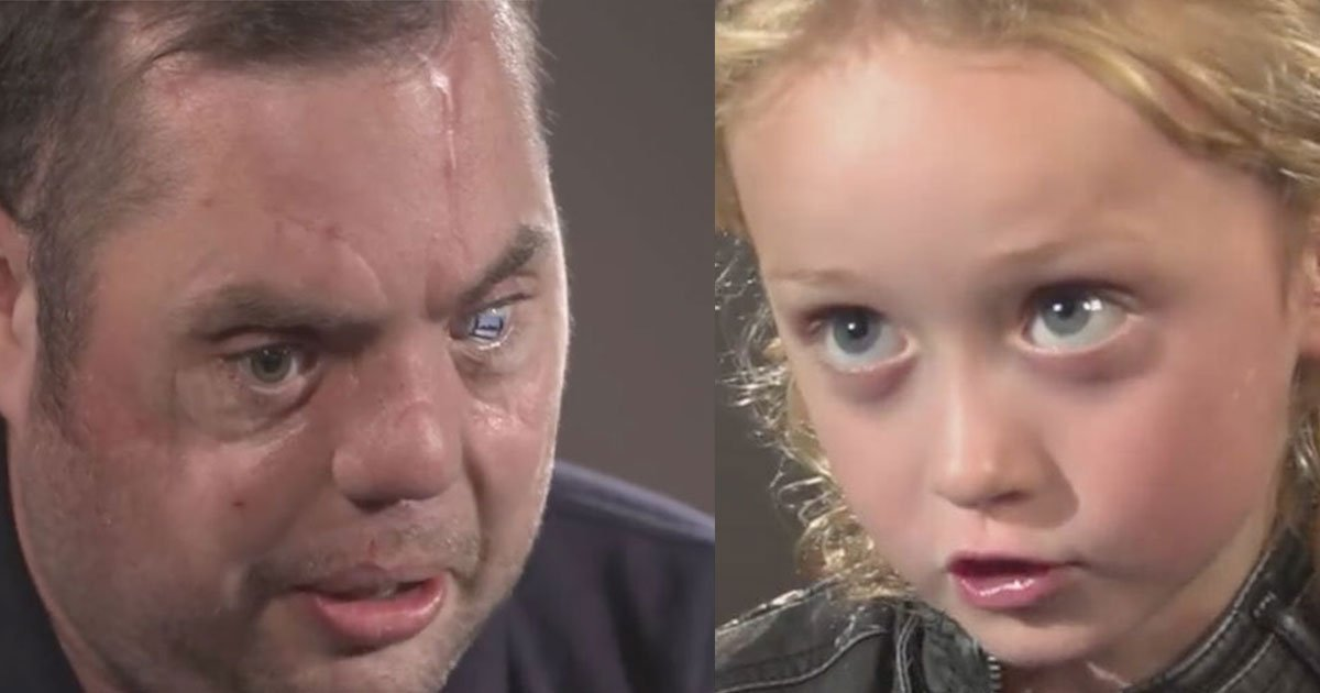 untitled 1 47 - War Veteran With Prosthetic Eye Met A 5-Year-Old Girl, And Here Is What Happened Next