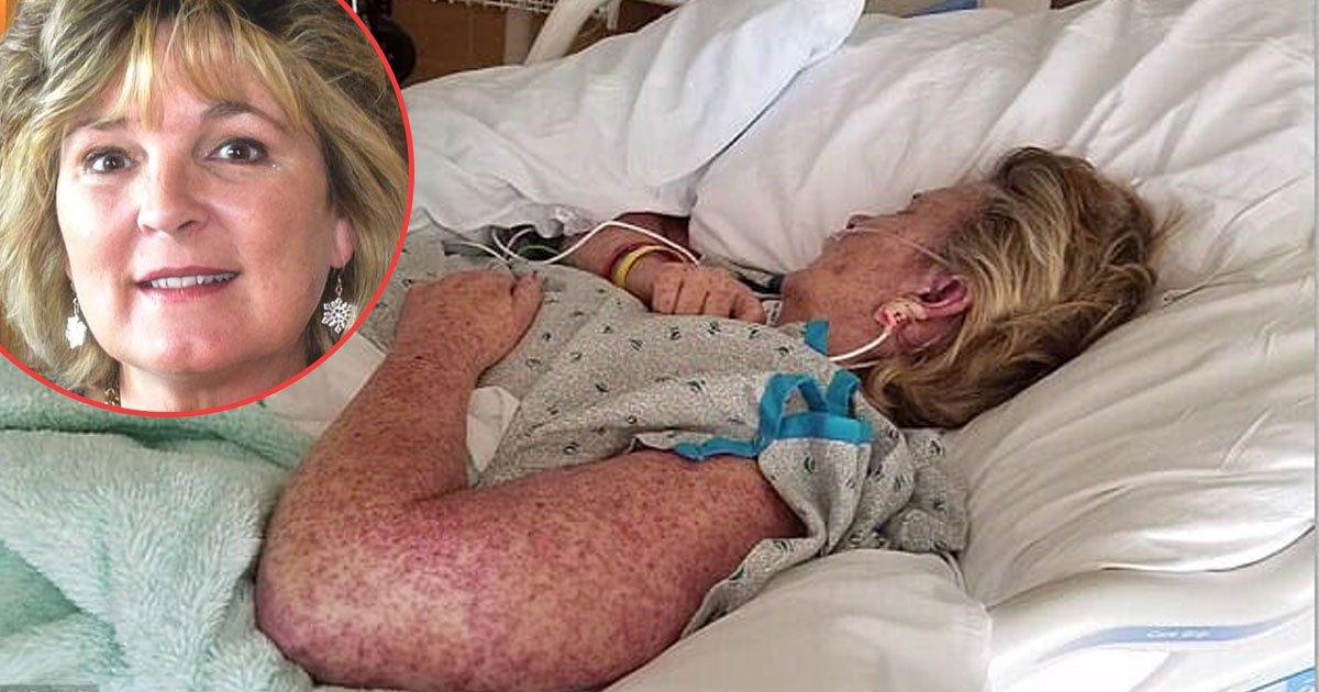 untitled 1 97.jpg?resize=648,365 - Perplexo caso da mulher que morreu depois de uma mordida misteriosa de uma praga comum
