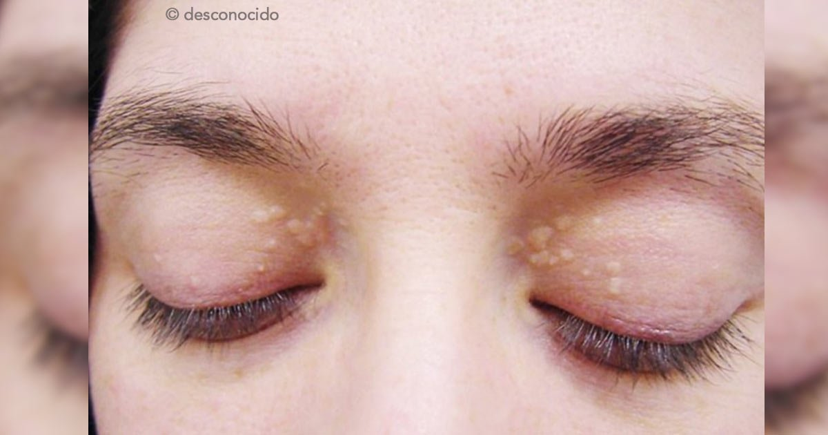 """untitled 1 98.jpg?resize=300,169 - ¿Tienes """"bolitas de grasa"""" alrededor de los ojos? Descubre qué son y cómo tratarlas"""