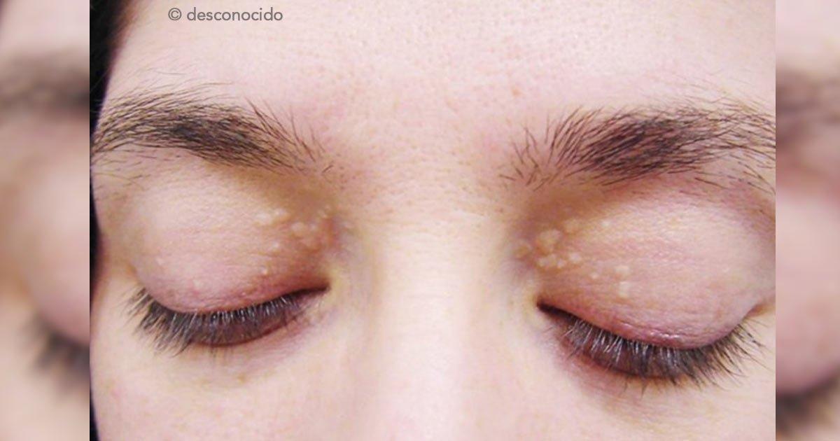 """untitled 1 98.jpg?resize=648,365 - ¿Tienes """"bolitas de grasa"""" alrededor de los ojos? Descubre qué son y cómo tratarlas"""