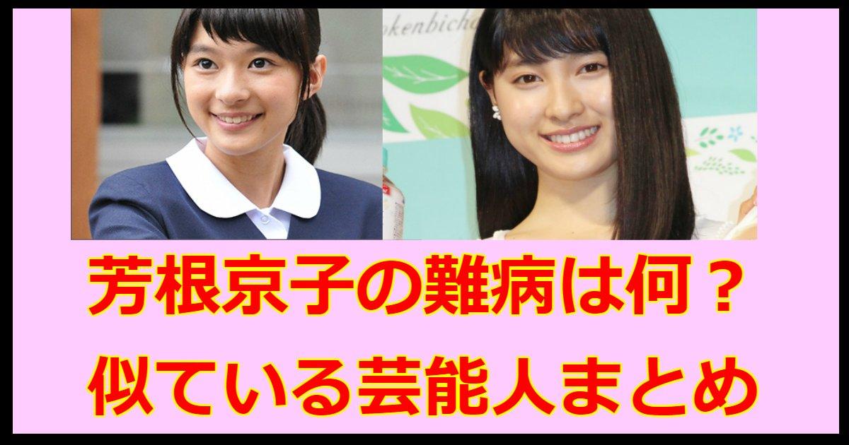 yoshine.png?resize=1200,630 - 芳根京子の難病は?似ている芸能人や今までの熱愛のうわさまとめ