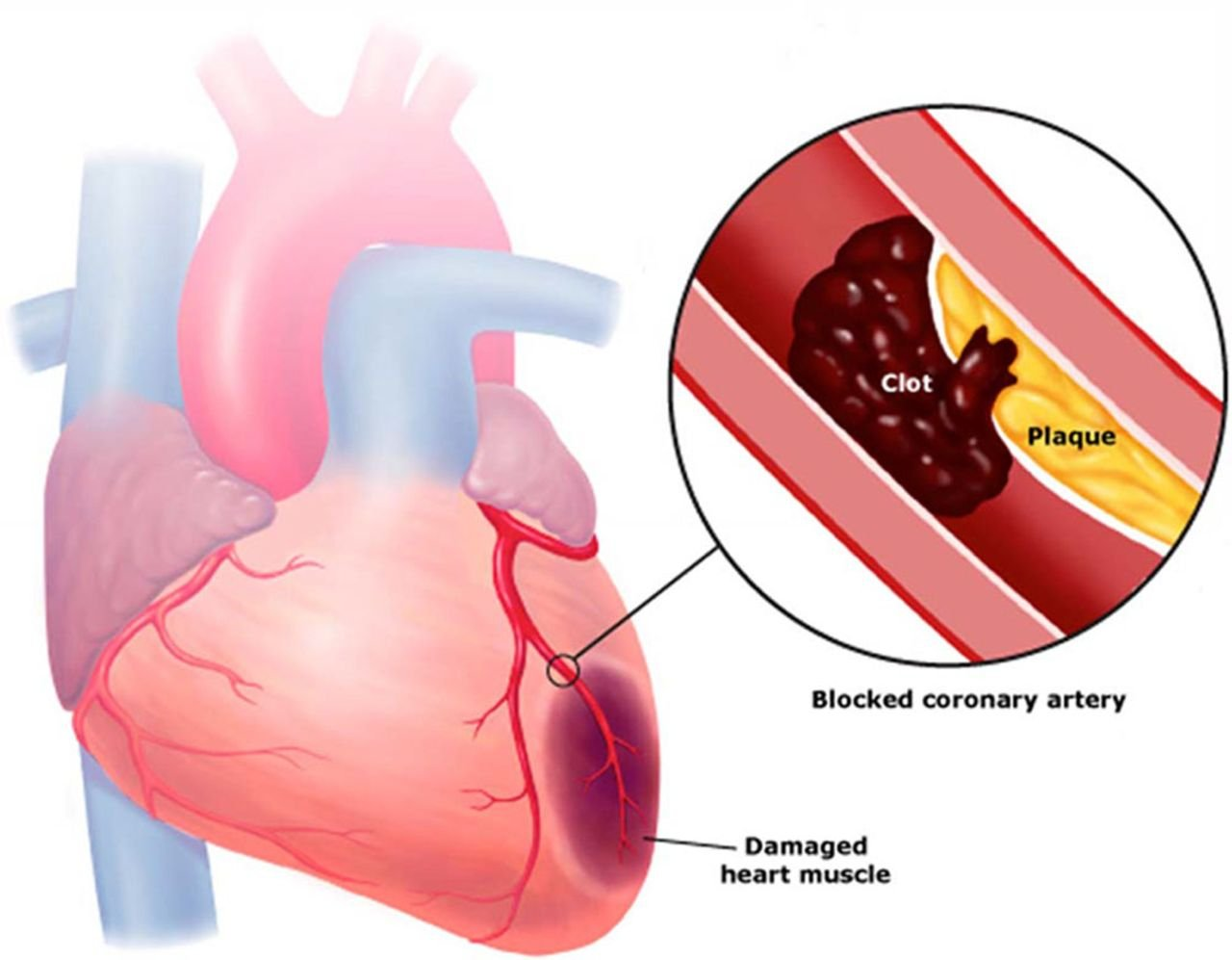 Clotting in heart