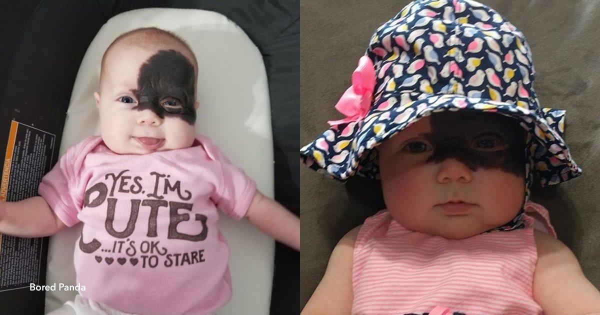 """5 cover 2.jpg?resize=648,365 - Esta beba nació con una marca en la cara y se convirtió en una """"pequeña superheroína"""""""
