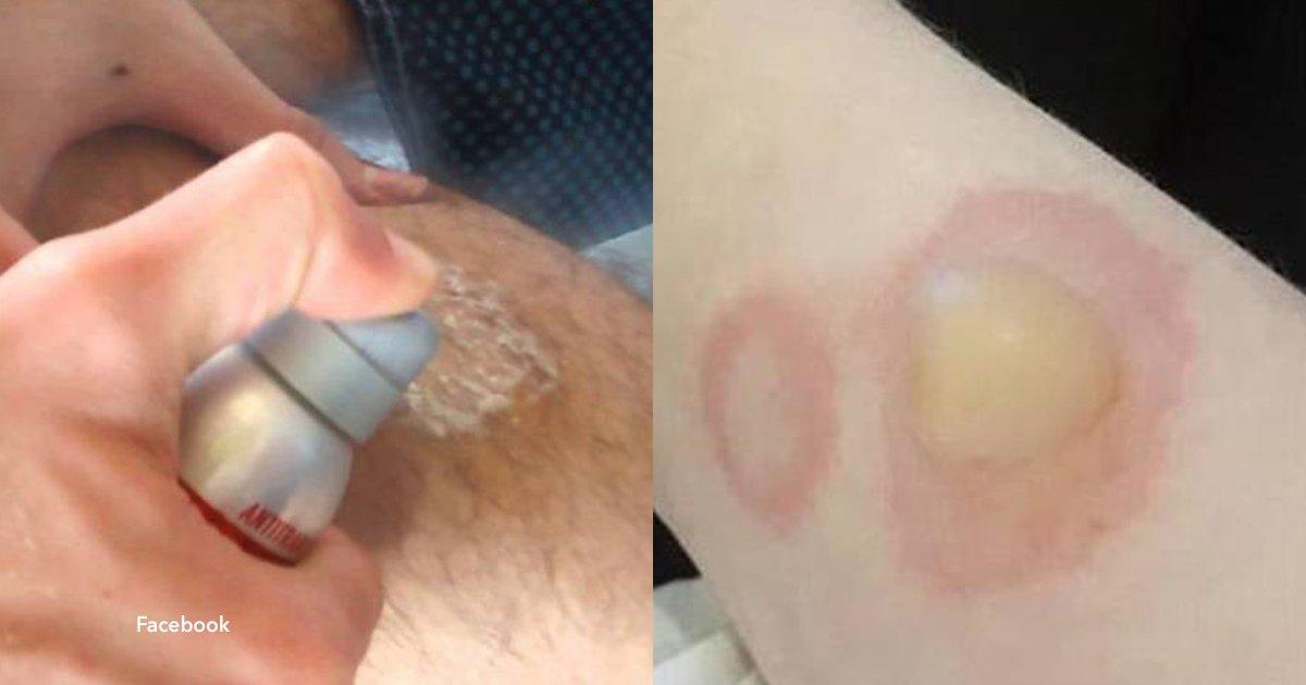 5 cover 3.jpg?resize=300,169 - Entre los adolescentes surgió un desafío sumamente peligroso, quemarse la piel con desodorante