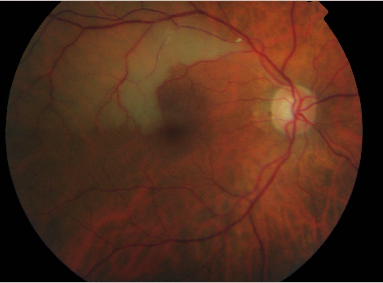 Clot in retina