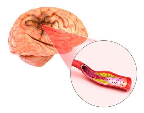 Brain clot